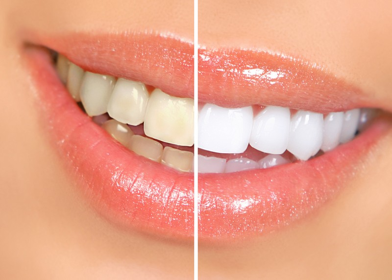 Teeth Whitening  Washington Court House, OH